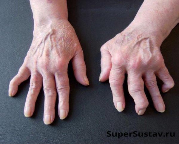 Народные средства лечения артрита пальцев рук в  137