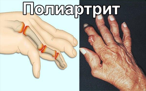 боли в суставах пальцев рук лечение антибиотики