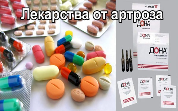 препараты для блокады сустава