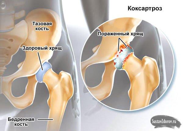 Коксартроз тазобедренный сустав лечение в домашних условиях 563