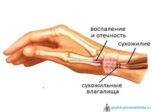 артроз лучезапястных суставов кистей рук