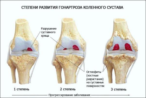 как лечить разрушение коленного сустава