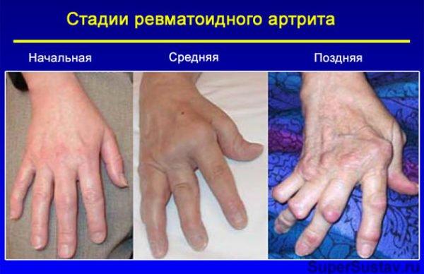 Как лечит артрит в домашних условиях