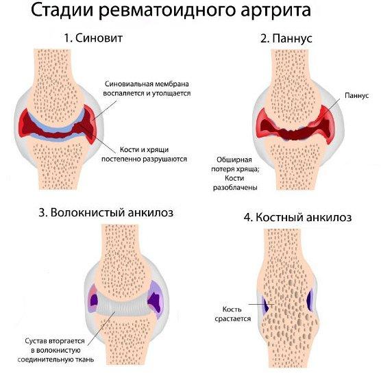 как лечить артроз коленных суставов без медикаментов