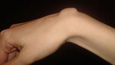 грыжа кисти сустава