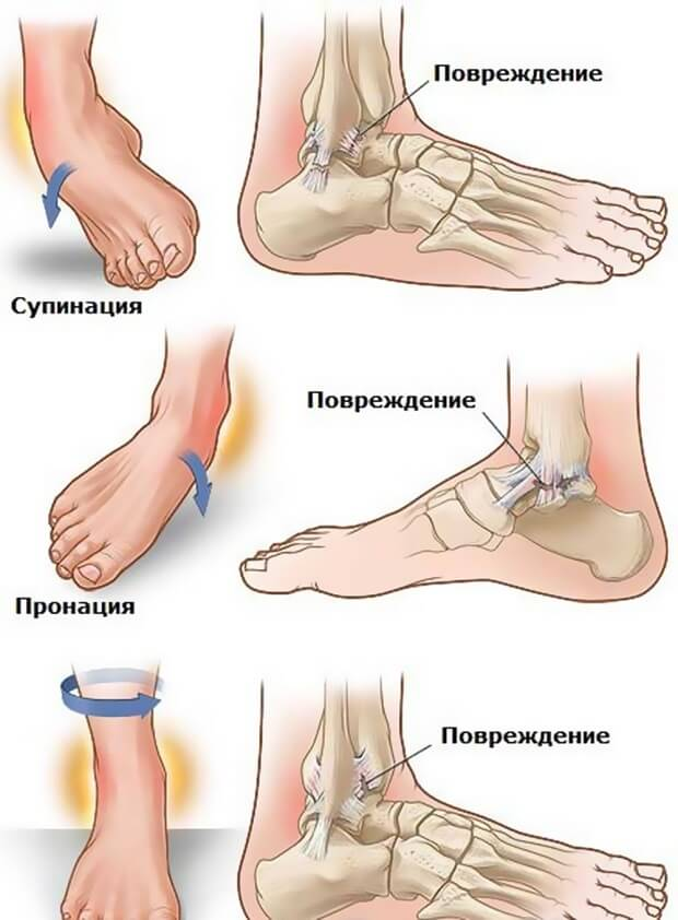 болит голеностопный сустав причины лечение