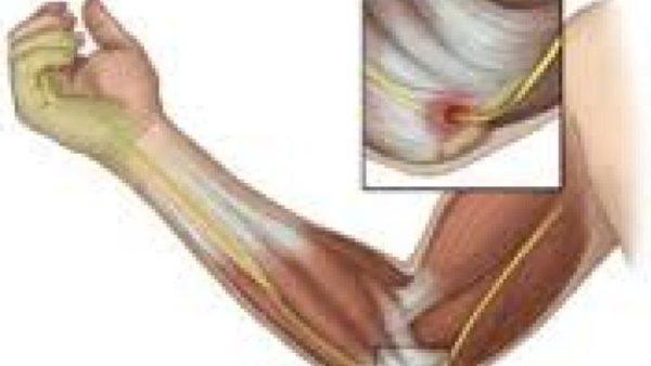 Сильная Боль В Плечевом Суставе Лечение