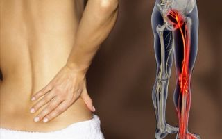 Радикулит поясничный симптомы и лечение медикаментозное