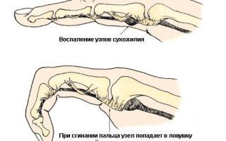 Боль в указательном пальце руки