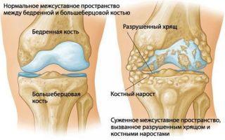 Основные симптомы артрита коленных суставов