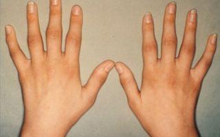 Почему могут опухать пальцы на руке