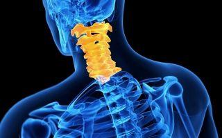 Что такое синостоз — основные признаки заболевания, методы эффективного лечения