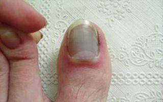 Особенности перелома большого пальца на ноге