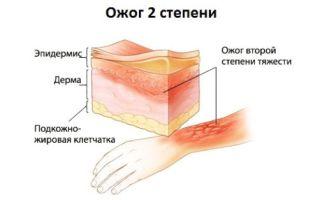Лечение ожогов 2 степени — действия при воспалении и этапы восстановления травмированных тканей