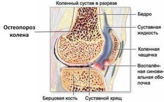 Особенности остеопороза 1 степени