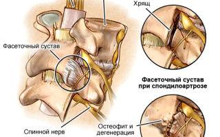 Как лечить спондилоартроз позвоночника