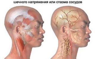 Миогелоз