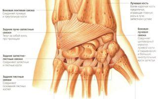 Растяжение связок лучезапястного сустава