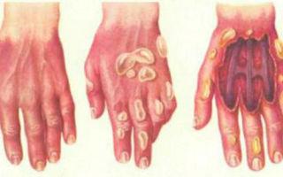 Степени ожогов и их характеристика: уровни поражения и их описание, особенности течения некроза