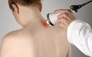 Чем и как лечить остеохондроз: наиболее эффективные способы