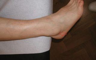 Шишка на большом пальце ноги: причина появления заболевания