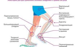 Боли в колене после занятий спортом