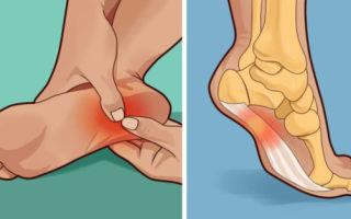 Боли в ступнях ног после ходьбы