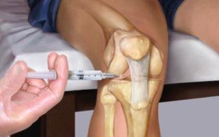 Уколы гиалуроновой кислоты в колено