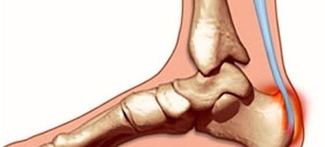 Лечим пяточный бурсит правильно: симптомы и диагностика