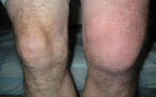 Опухоли коленного сустава