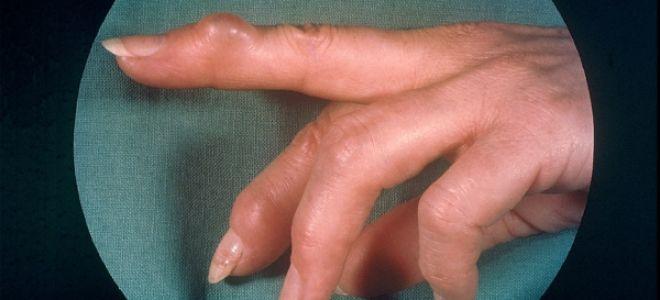 Что такое узлы Гебердена: причина появления, как подобрать лечение