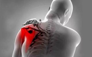 Как правильно лечить тендинит плечевого сустава