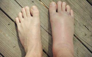 Симптомы вывиха лодыжки и как его лечить