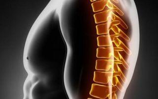 Остеоартроз позвоночника и его лечение