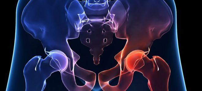 Чрезвертельный перелом: основные признаки травмы, методы диагностики и лечения