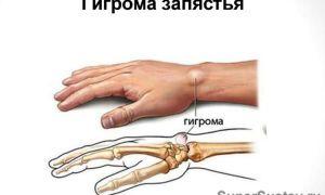 Гигрома запястья: симптомы, лечение, причины