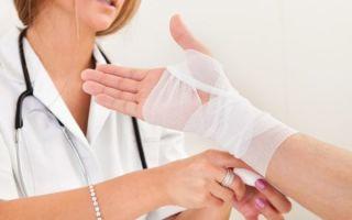 Как долго нужно разрабатывать руку после перелома и какие меры реабилитации предпринять в домашних условиях?