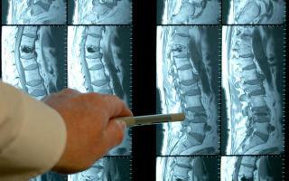 Магнитно-резонансная томография (мрт) пояснично-крестцового отдела