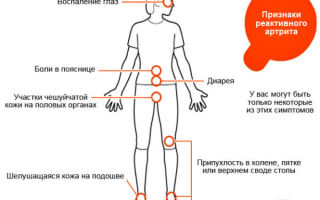 Симптомы реактивного артрита и его лечение