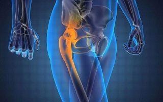 Болезнь Пертеса (тазобедренного сустава) у детей — способы лечения