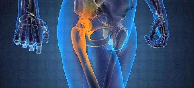 Болезнь Пертеса (тазобедренного сустава) у детей