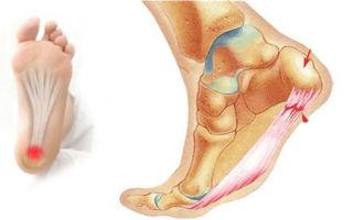 Основные причины боли в пятке при ходьбе