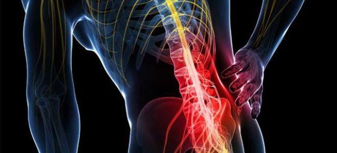 Остеопороз позвоночника: симптомы и лечение в домашних условиях