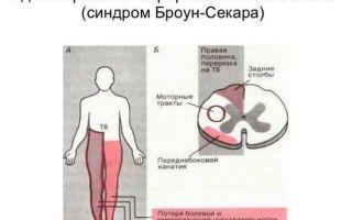 Синдром броун-секара
