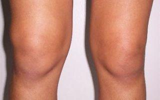 Синовит коленного сустава: симптомы и лечение