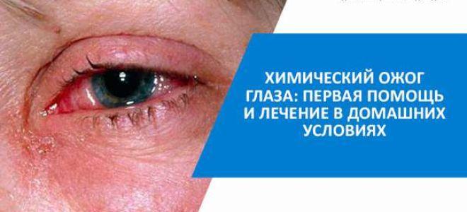 Симптомы и лечение ожога глаз кварцевой лампой — все что нужно знать для оказания помощи больному