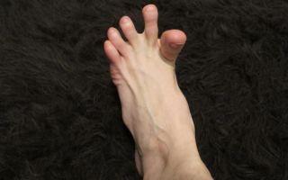 Что делать, когда сводит ноги судорогой: причины, методы лечения