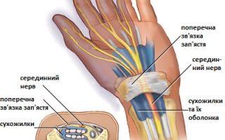 Синдром карпального канала кисти