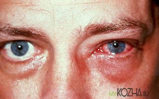 Что представляет из себя ожог роговицы глаза