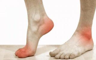 Почему может болеть стопа при ходьбе